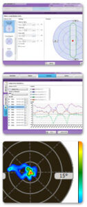 NeuroMusculaire Controle Software Pro (NMC Pro)